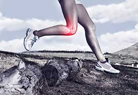 Patellar Tendinitis Beverly Hills, CA